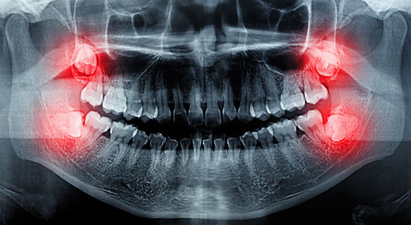 Wisdom teeth extractions in Frisco